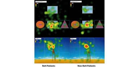 Gaze plots illustrating Rett and non-Rett individuals attention span.